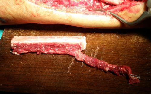 η διαμόρφωση του οστικού μοσχεύματος για την τοποθέτησή του στο αντιβράχιο