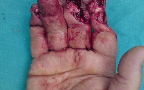 Μικροχειρουργική | Χειρουργική Χεριού - Ελλάδα Παπαδογεώργου